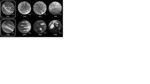 endomikroskopi2