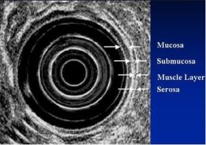 endosnografi